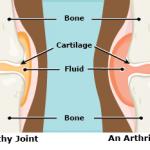 【子供の手首の痛み】若年性特発性関節炎(JIA)という病気らしいです